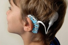 Cochlear-Implant-on-boy